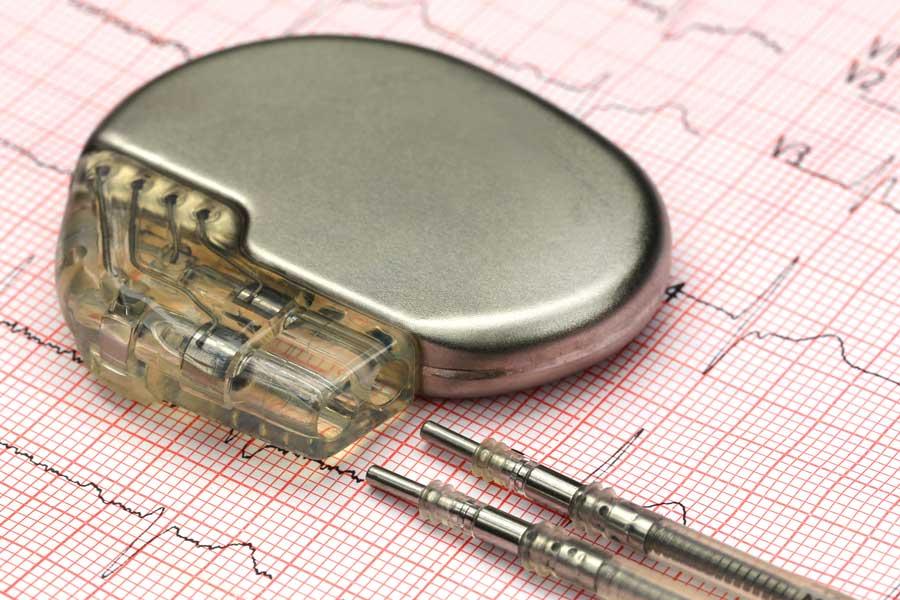Herzschrittmacher auf EKG