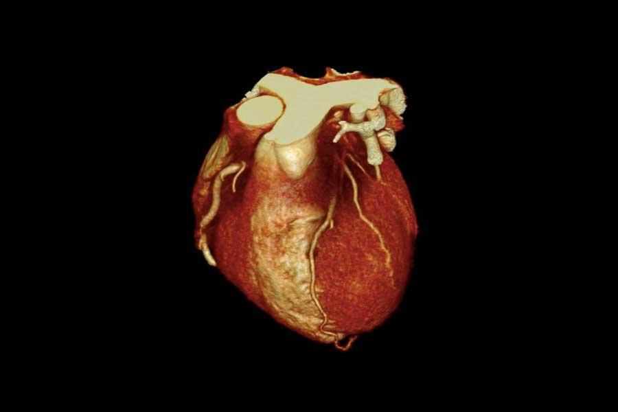 Computertomographie des Herzens (Herz-CT)