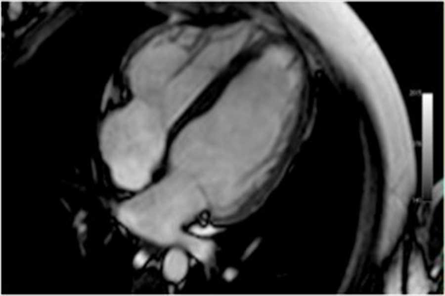Magnetresonanztomographie des Herzens (Herz-MRT)